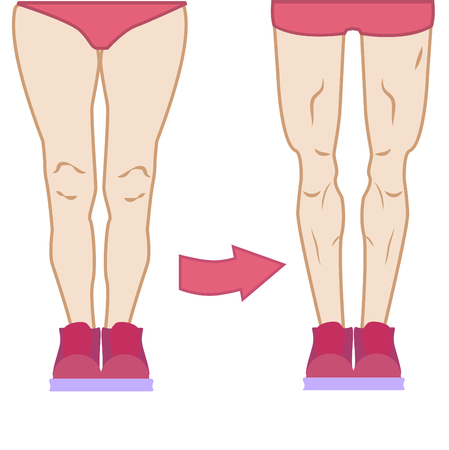 Legs workout challenge, different types body, tights fat and muscles, love your body in different condition