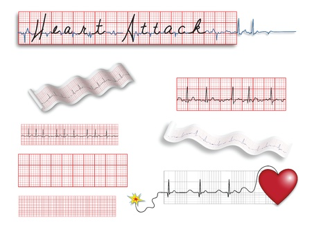 ekg: Full page of electrocardiograms and heart disease illustrations