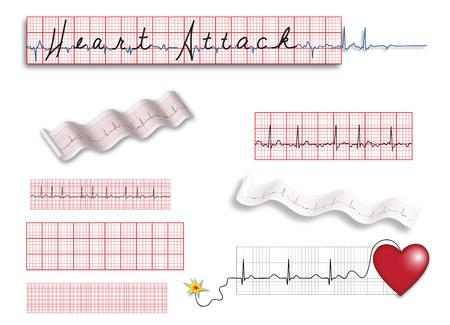 mortalidad: P�gina completa de los electrocardiogramas y las ilustraciones de enfermedad cardiaca