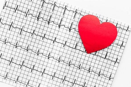 Examine the heart to prevent heart disease. Heart sign and cardiogram on white background top view Stock Photo