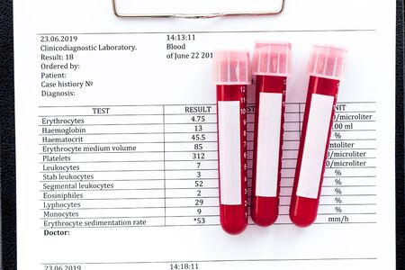 Blood tubes on test results top view