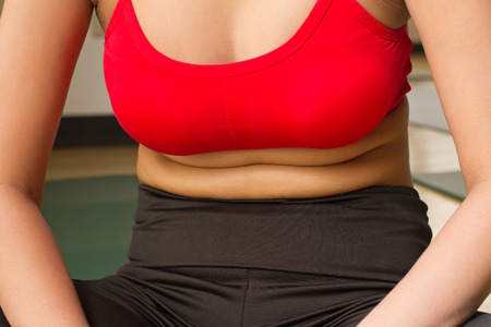 excessive: fat belly of woman with excessive obesity Stock Photo