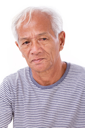 old senior man suffering from eye disease, surfers eye, pterygium, poor eyesight Stock Photo