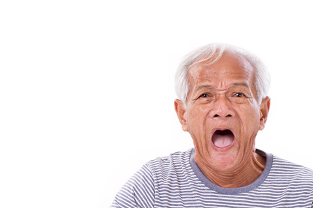 shocked, stunned, unhappy old man with surfer's eye or pterygium