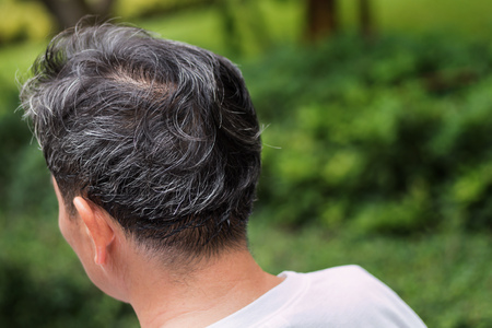 old senior or middle aged man with grey hair problem