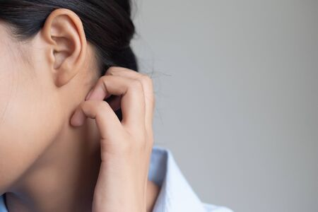 woman scratching her neck skin; dry skin, allergic skin inflammation, body care, fungus inflammation, dermatology disease, eczema, ringworm, rash, skin care concept; young adult asian woman model 写真素材