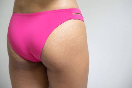 woman hip with stretch mark and cellulite, concept of beauty skin care