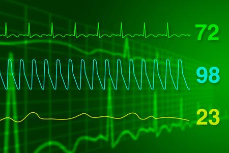cardiograph: Concept of heart monitor