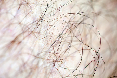 hormone  male: Male human hair close up