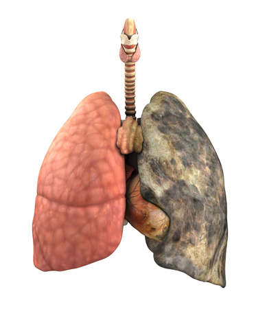 emphysema: A set of lungs, before and after a lifetime of smoking - 3d render. Stock Photo