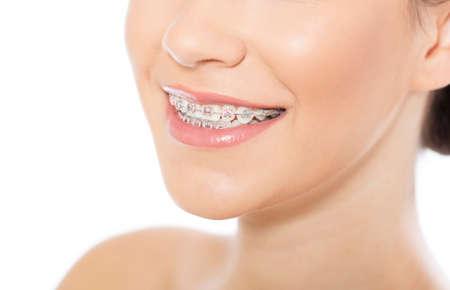 appareil dentaire: Portrait de belle jeune femme portant des accolades, isolé sur blanc Banque d'images