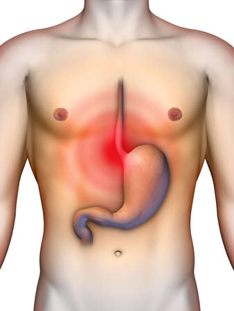 Acid reflux from stomach causing chest pain. Digital illustration, clipping path included.
