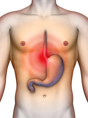 esofago: El reflujo ácido del estómago que causa dolor en el pecho. Ilustración digital, sin recortar camino.