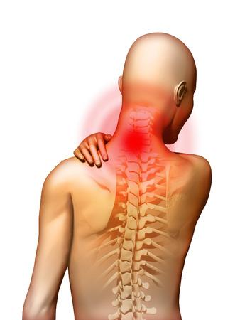 hombros: Back-dolor localizado en la zona del cuello. Ilustraci�n digital.