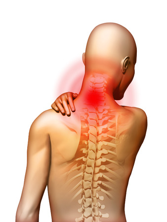 body pain: Back-pain located in the neck area. Digital illustration.