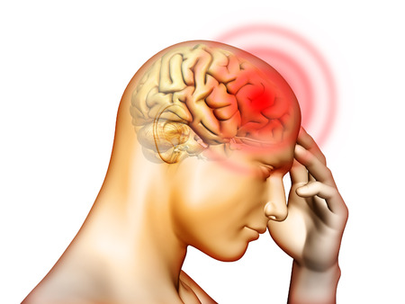 Medizinische Illustration über Schmerzen im Kopf gelegen. Digital Illustration. Lizenzfreie Bilder