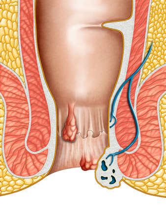 hemorrhoid: Anatomical drawing showing internal and external hemorrhoids. Digital illustration.