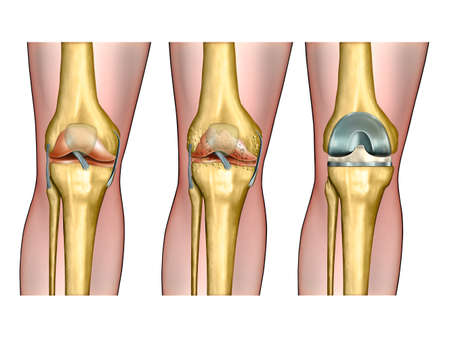 osteoarthritis: Healthy knee anatomy, degenerative arthritis of the knee and replacement surgery. Digital illustration.