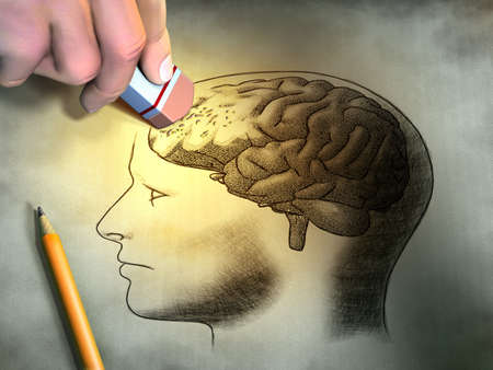 recall: Someone is erasing a drawing of the human brain. Conceptual image relating to dementia and memory loss. Digital illustration. Stock Photo