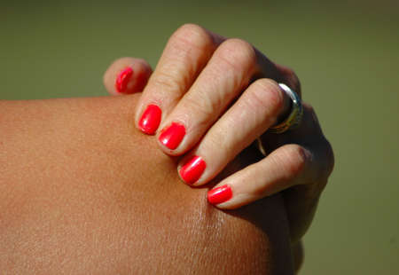 A white female hand of a caucasian woman with red nailpolish on the fingernails holding and scratching the itchy and sore skin of her naked shoulder outdoors because of her sunburnt skin
