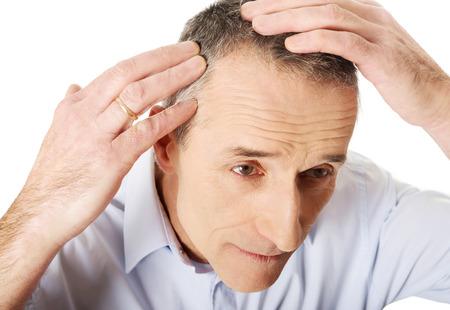 bald man: Por encima de vista de un hombre examinando su cabello.