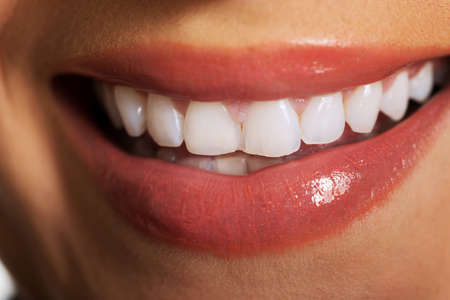Schließen Sie sich auf Frau weiße Zähne. Lizenzfreie Bilder