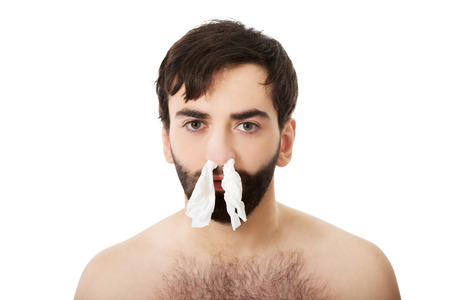 Poor sick man with tissues in nose. photo