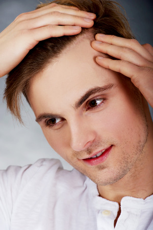Young handsome man is worried about hair loss.