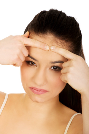 squeezing: Teenage woman squeezing pimple on forehead. Stock Photo