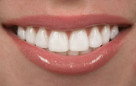 orthodontist: Healthy teen mouth