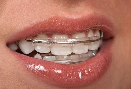 Girl with dental braces ( retainer)  photo