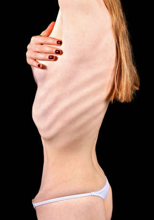 wanorde: Deel van het lichaam van de vrouw lijden van anorexia nervosa  Stockfoto
