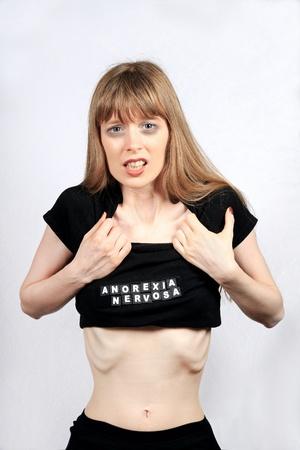 disorders: Devastada ni�a sufre de anorexia nerviosa Foto de archivo