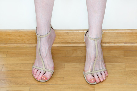 swollen: Fashion model feet after fashion week catwalk