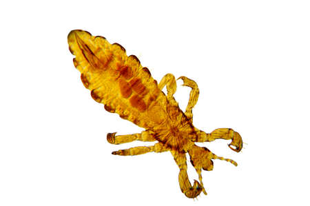 Photomicrograph of Pediculus humanus, the common body louse (lice).