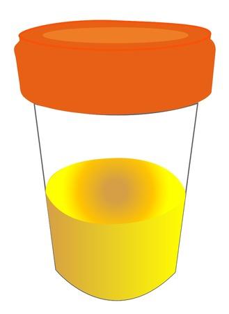 examenes de laboratorio: muestra de orina en el frasco con ella - vector Vectores