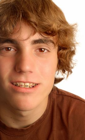 fix jaw: attractive fourteen year old boy with braces on his teeth