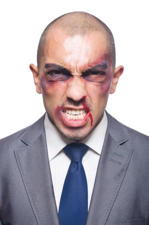 hematoma: Badly beaten businessman isolated on white Stock Photo