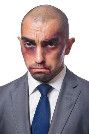 bruised: Badly beaten businessman isolated on white Stock Photo
