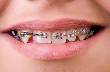 Mouth with brackets braces in medical concept photo