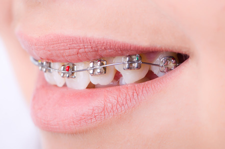 crooked teeth: Mouth with brackets braces in medical concept
