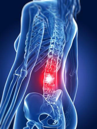 colonna vertebrale: 3d ha reso l'illustrazione medica - mal di schiena