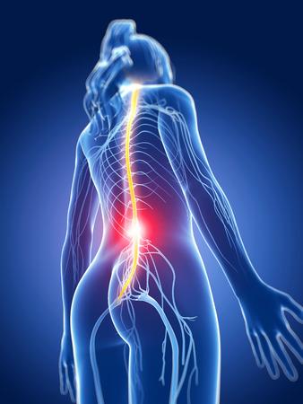 backache: 3d rendered medical illustration - painful nerves