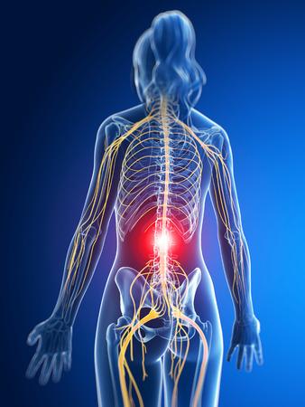 chiropractor: 3d rendered medical illustration - painful nerves