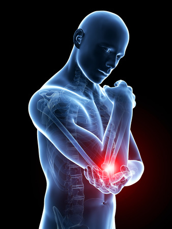 radius ulna: 3d rendered medical illustration - painful elbow