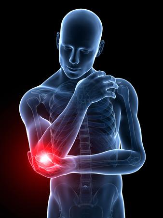 codo: 3d rindió la ilustración médica - codo doloroso