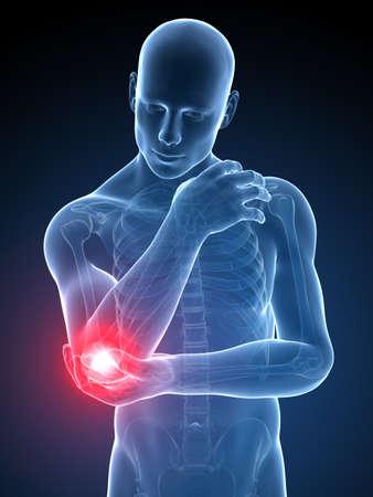 elleboog: 3d teruggegeven medische illustratie - pijnlijke elleboog Stockfoto