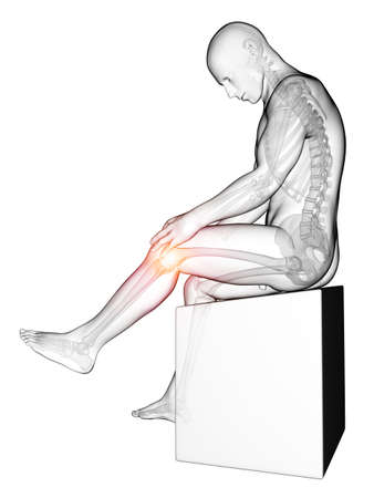 males: 3d rendered medical illustration - painful knee
