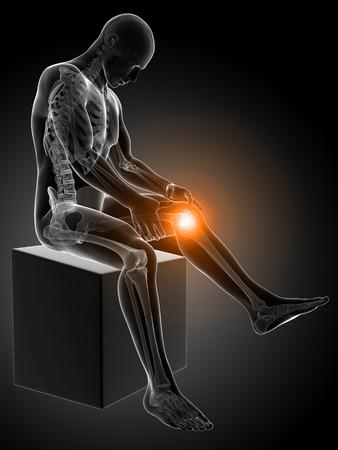 3d rendered medical illustration - painful knee illustration
