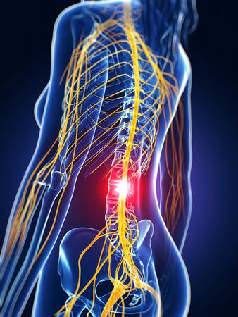 3d rendered medical illustration - backache